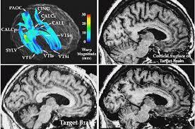 Sagittal Brain Mri Anatomy Paul Thompson U0027s Research Publications