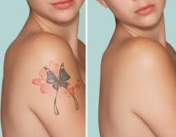 tattoo removal shoulder all natural tattoo removal elephant journal