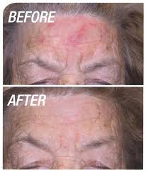 Blu U Before And After Photodynamic Skin Cancer Therapy West Vancouver Bc