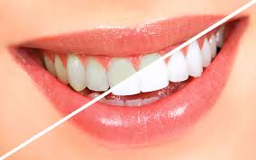 how to achieve a better smile with the use of teeth whitening