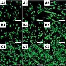the antitumor properties of biomedical magnesium metal Journal
