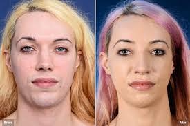 feminizeing hair facial feminization surgery 2pass clinic 1 to pass