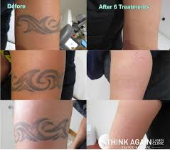 100 about laser tattoo removal cornwal laser tattoo removal