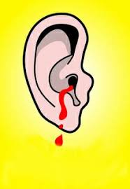 My Ears Are Bleeding Meme - help my ears are bleeding zehira blog