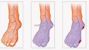 Foot Vascular Anatomy Simple Home Remedy For Poor Blood Circulation In Legs And Feet