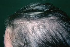 womans hair thinning on sides picture of female pattern baldness