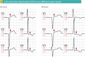 strain pattern ecg meaning the ecg in left ventricular hypertrophy lvh criteria and