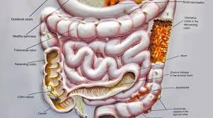 crohn u0027s diet treat and prevent crohn u0027s disease with a whole food
