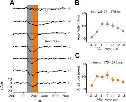 neural correlates of auditory perceptual awareness under