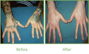 laser tattoo removal u2013 vale laser clinic