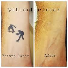 atlantic laser tattoo removal home facebook