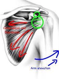 Bench Press Shoulder Impingement Shoulder Pain In Burlington Again