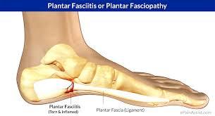 Planters Fasciitis Surgery plantar fasciitis tiffaneyvanderweel