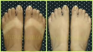 Home Tricks Skin Whitening Home Remedy 100 Effective Remove Tan