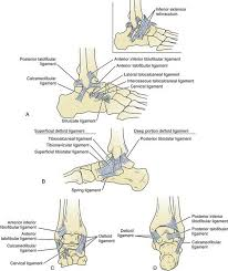 Posterior Inferior Tibiofibular Ligament Disorders Of The Foot And Ankle Clinical Gate