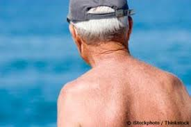 increase in melanoma skin cancer not caused by sun exposure