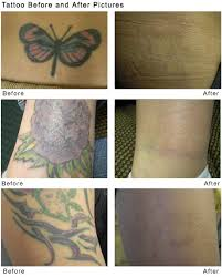 spectra laser tattoo removal u2013 beautyworks