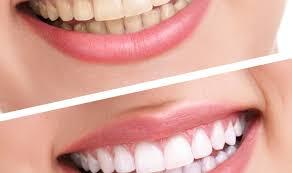 teeth bleaching best teeth whitening beautiful good teeth
