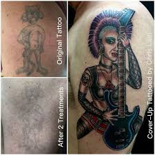 tattoo removal corpus christi best tattoo 2017