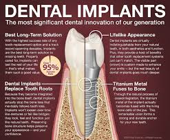 township dental implants faqs about dental implants