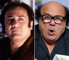 Danny Devito Hair Today Gone Tomorrow Balding Celebrities Slide 23 Ny