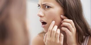 Face Mapping Acne The Cause Of Your Pimples Acne Face Mapping For Treating Pimples