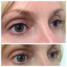 eyeliner tattoo images eyeliner tattoo over waterline pink clinic