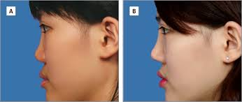 treatment outcomes of saddle nose correction jama plastic