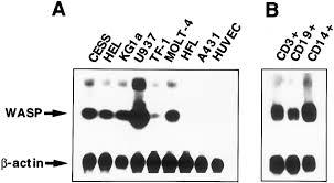 The B Expression Of Wiskott Aldrich Syndrome Protein Wasp Gene During