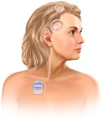 brain sciences free full text deep brain stimulation in