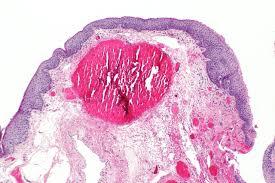pilonidal cyst histology image gallery hemorrhoid histology