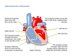 heart racing and light headed palpitations london paediatric cardiologist child heart specialist