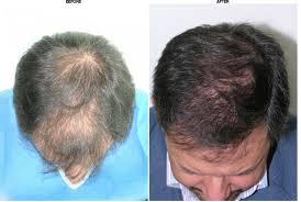 hair transplant costs in the philippines kaloni tijuana in tijuana mexico best price guaranteed