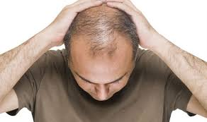 new hair growth discoveries baldness cure miracle surgery gives men their hair back health