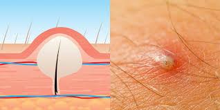 do ingrown hair hurt everything you need to know about ingrown hairs self