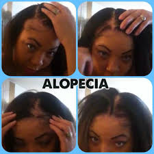alopecia hair loss ovarian cyst sufferer no edges my story