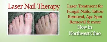laser nail therapy now in northwest ohio
