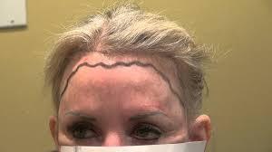 female receding woman receding hairline and corner transplant restoration