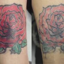 tattoo removal canada closed 18 photos tattoo removal 2300