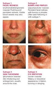 Get Rid Of Blind Pimple How To Get Rid Of Bumps On Face Not Acne Doctor Answers