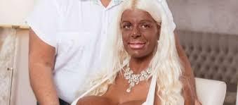 martina big la donna con il seno più grande al mondo cambia il colore della pelle