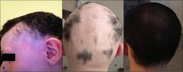Injection In Scalp For Hair Growth Hair Growth In Two Alopecia Patients After Fecal Microbiota
