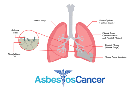 mesothelioma blood tests mesothelioma diagnosis treatment