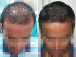 acell hair loss treatment prp stimulated fue