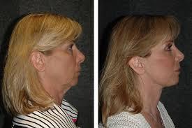 best short haircuts for turkey neck mini face lift face lift