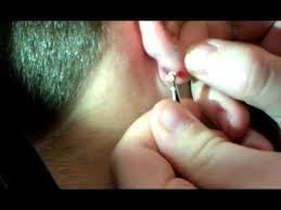 earring remover vitiritto home surgery