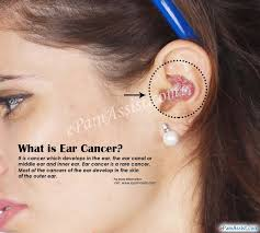cancer of the ear cartilage what is ear cancer causes symptoms treatment stages diagnosis