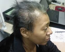 balding hair styles for black women uh oh it s not enough to go natural you have to watch the