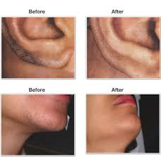 how much does laser hair removal cost on back how much does laser hair removal cost dermaworld skin clinic
