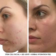 light treatment for skin face plus medispa sydney strike a pose lit